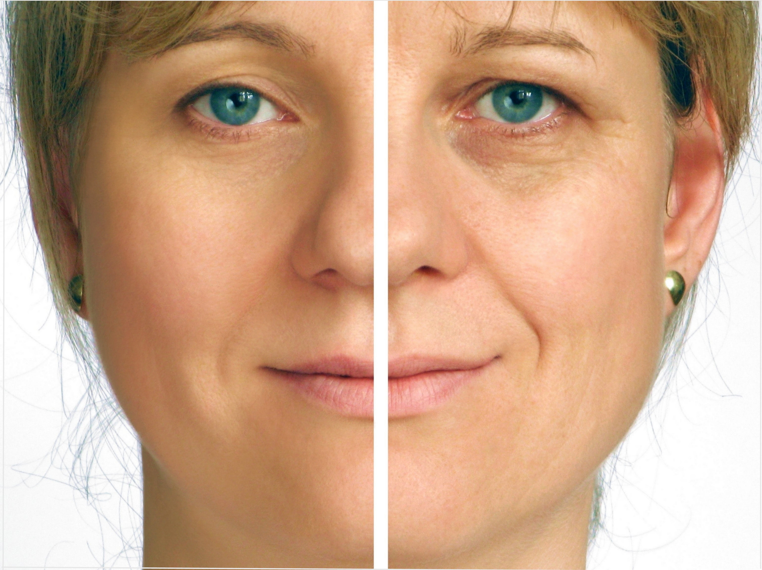 instant facelift extention